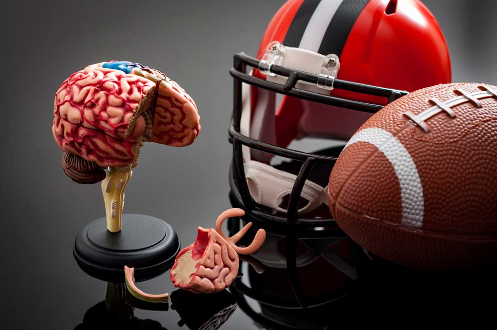 Brain Recovery Longer Than Clinical >> Concussion Recovery Longer In Brain Than Clinically Voxitatis Blog