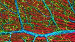 Confocal micrograph of mouse retina depicting optic fiber layer. Image courtesy of National Center for Microscopy and Imaging Research, UC San Diego.
